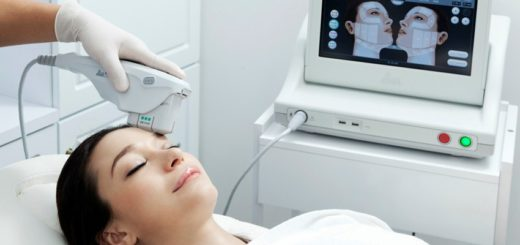 ultherapy for forehead