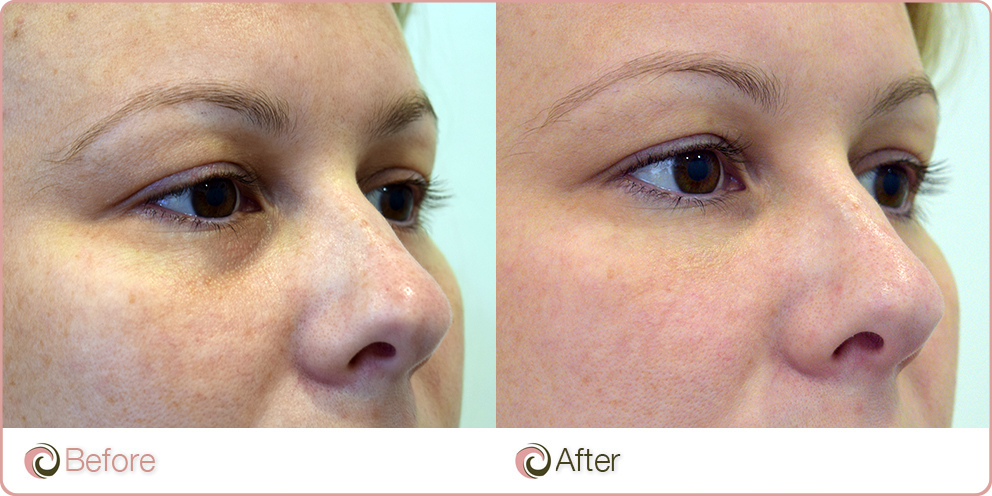 Makeup Ideas under eye hollows makeup photographs : How Under Eye Filler Works? Cost - Treatment and Before After Results